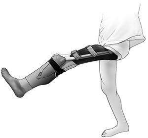 Plastyka rotacyjna - proteza